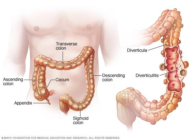 Diverticulitis Sacs In Colon Word Of Health